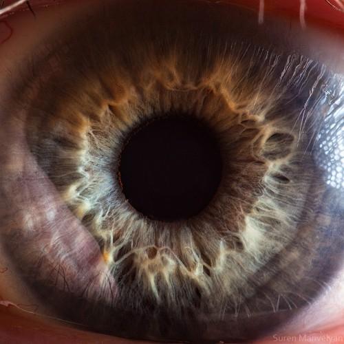 Suren Manvelyan human eye 0.jpg