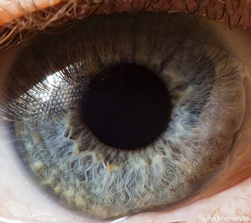 Suren Manvelyan human eye.jpg