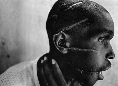 james nachtwey Hutu qui n'a pas supporté le génocide emprisonné et mutilé, Rwanda, 1994.jpg